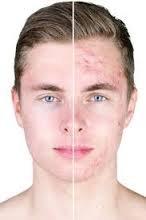Co mówi o nas skóra? Bezpłatny wykład