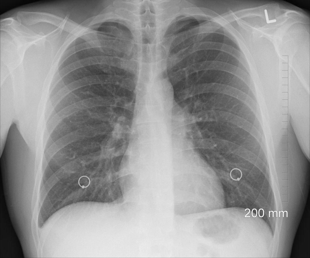 Zbadaj Płuca. Bezpłatnie