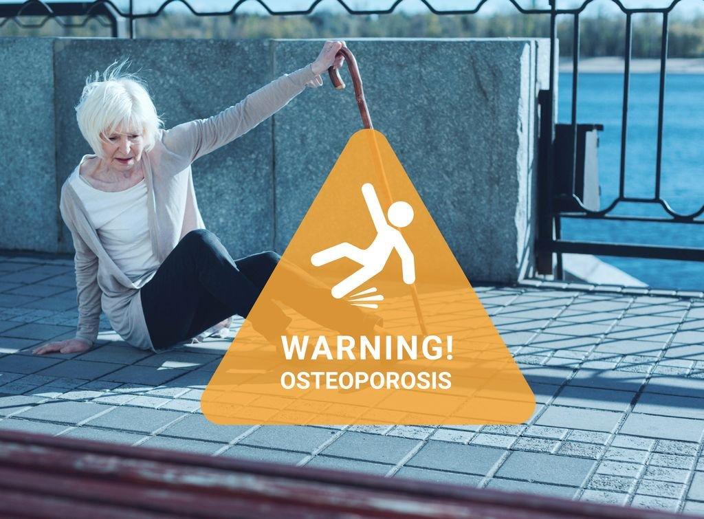 Niebezpieczna osteoporoza